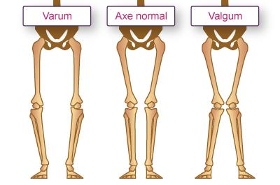 Quelles sont les causes de l'arthrose ? | la rhumatologie pour tous