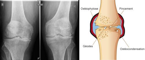 Comment diagnostiquer l'arthrose ?   la rhumatologie pour tous