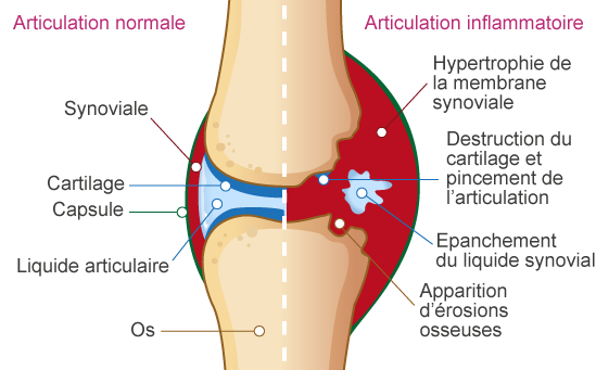 Afla totul despre artroza: Simptome, tipuri, diagnostic si tratament | scaune-ieftine.ro