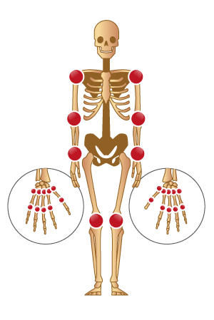 Comment se manifeste la polyarthrite rhumatoïde ? | la ...