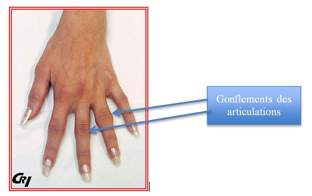 Traitement - La Polyarthrite Rhumatoïde - Cliniques universitaires Saint-Luc |  Acide hyaluronique gélules