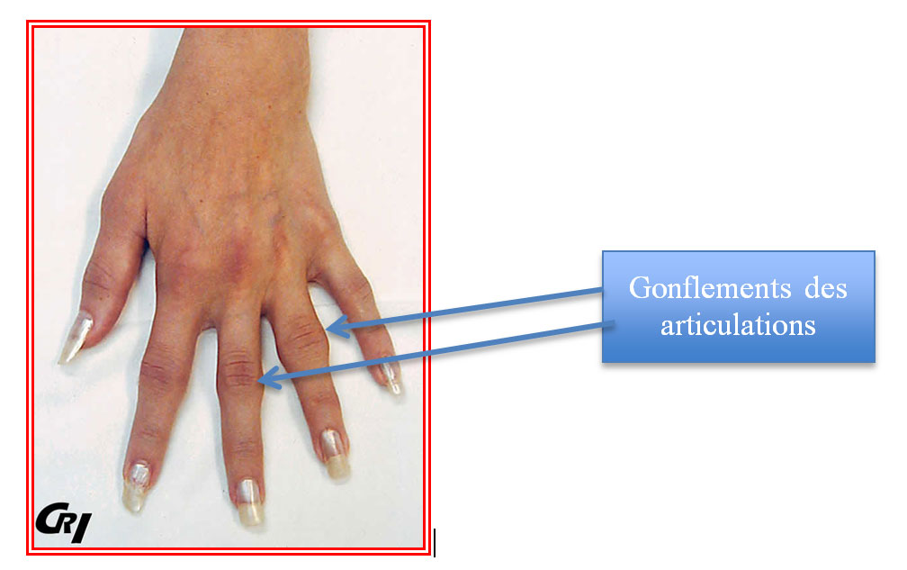 Achat Boswellia - Arthrite - Qu'est-ce que l'arthose ? Comment la traiter ...